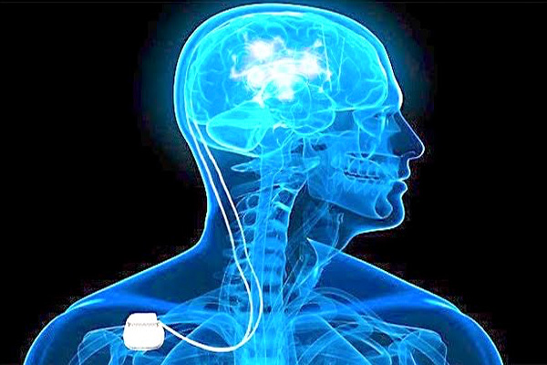 addiction recovery ebulletin deep brain stimulation