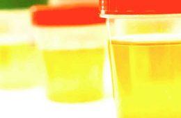 addiction recovery ebulletin drug test unemployed